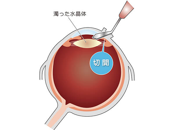 【画像】眼球の切開