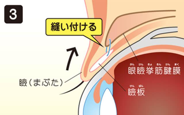イメージ:瞼の短縮