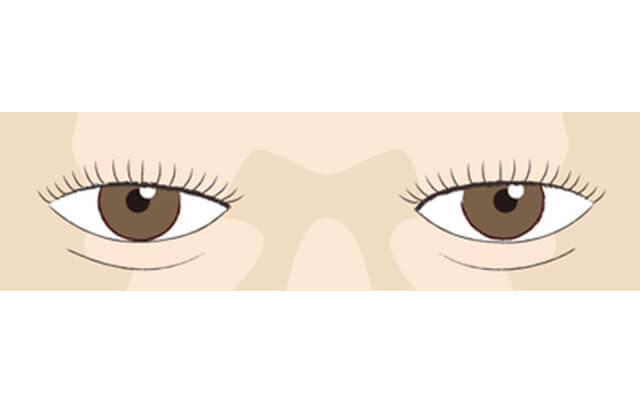 イメージ:バランス調整・皮膚縫合
