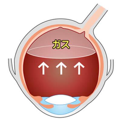 イメージ:硝子体手術