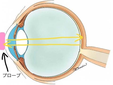超音波眼軸長測定