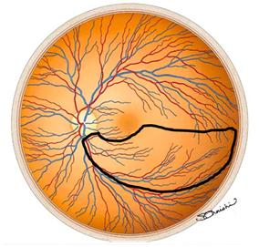 緑内障の視野1