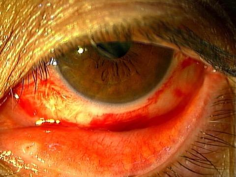 カレーシス 結膜下出血