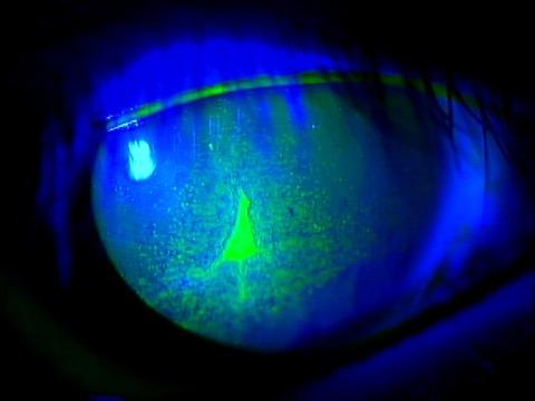 角膜上皮剥離1