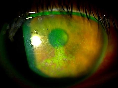 角膜上皮剥離2