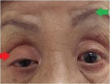片眼下垂術前