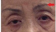片眼下垂術後